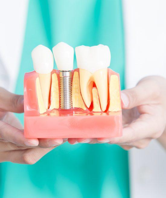 implantes dentales en Salou y Tarragona